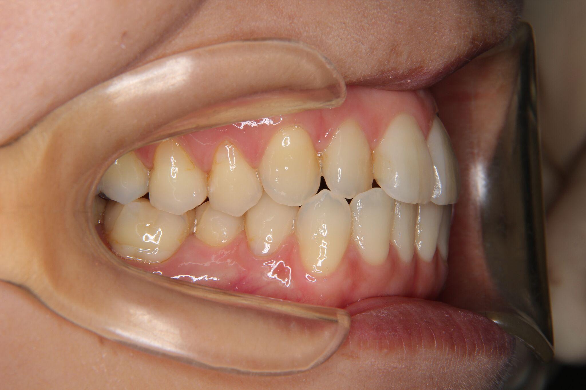 前歯部叢生  よしかわ矯正歯科 症例